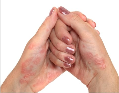ce inseamna dermatita atopica sapun